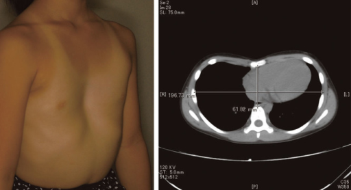 Case report. The preoperative clinical appearance and assessment by computed tomography.