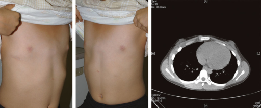 The postoperative clinical appearance and assessment by computed tomography. Only a single scar is observed on the right side of the chest, with a satisfactory correction of the deformity.