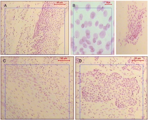 Feulgen stained nuclei of epithelial cells. (A) Nuclei of epithelial cells showing a normal diploid nuclear content. (B) Feulgen stained nuclei of malignant epithelial cells found in the urine smear of a chronic urinary bilharziasis patient. The nuclei show aneuploid DNA content with high proliferation pattern with 100× and 400× magnification for A&B respectively. (C & D) Feulgen-stained nuclei of epithelial cells from tissue sections of a biopsy sample showing bilharzial associated carcinoma.