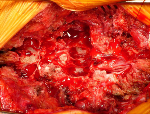 Intra-operative photograph obtained after tumor resection. During the patient's surgery, we found extensive scalloping of the vertebral body and a large defect in the ventral dura mater due to tumor invasion. The arrow identifies the scalloping of the vertebral body.