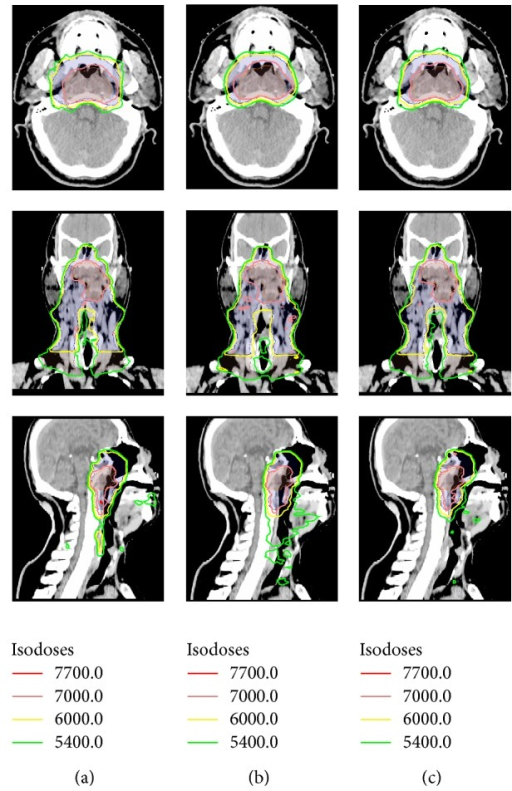 Dose distributions on axial, coronal, and sagittal views for one representative case: (a) 9F-IMRT, (b) 2ARC-VMAT, and (c) Hybrid IMRT/VMAT.