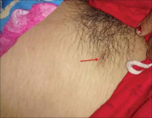 18-year-old adult female who presented to the emergency department in an unconscious state with fever and rash was diagnosed with scrub typhus. The photograph of the patient shows presence of eschar on the right side of the pubic region (red arrows).