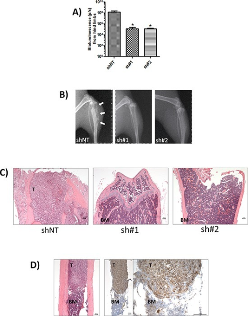 CD44 expression promotes bone metastasis(A) Normalised quantification of bioluminescent signals from mice hind limbs injected with indicated clones. Data represents the mean ± SEM (n = 6; *p < 0.05 by t-test). (B) Representative digital radiographs of hindlimbs from mice in each experimental group. White arrows indicate osteolytic bone lesions. (C) Representative demineralized bone sections from each experimental group. H&E-stained sections showing complete replacement of bone marrow by tumor in shNT-mice (left) compared with absence of tumor cells in mice injected with sh#1 and sh#2 clones (middle and left). All images are x50 magnification with scale bar equal to 100 μm. (D) Representative tumor-specific CD44 immunoreactivity (note strong membraneous staining) and corresponding H&E stain of demineralized bone sections from mice inoculated with MDA-MB-231 shNT cells. Magnification is x50 for H&E image (left) and left image of CD44 immunoreactivity and x200 for right image of CD44 staining; scale bar equal to 100 mm. T = tumor BM = bone marrow.