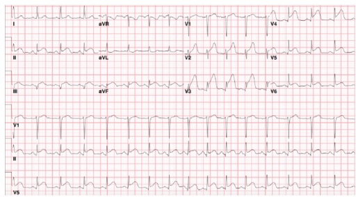 Initial ECG showing ST elevations in V2–V5, II, III, and AVF which are consistent with anterolateral and inferior STEMI.