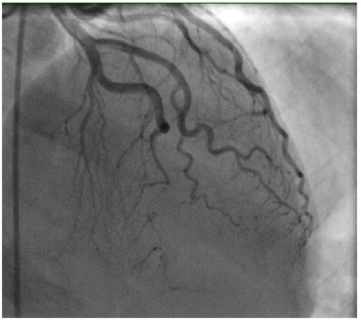 Cardiac catheterization demonstrating severe mid to distal LAD occlusion.