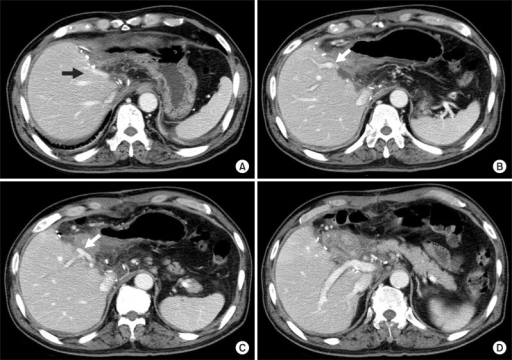 Computed tomography images taken at 10 days after surgery. Two middle hepatic vein trunks are visible (A); The portal vein branch to the theoretical left medial section is visible (arrow, B); The portal vein branch to the right anterior section is visible and an arrow indicates the site of branch patch repair (C); The portal vein branch to the right posterior section is visible (D).