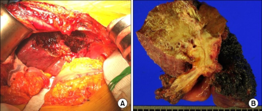 Gross photographs of the operative field after resection (A) and the resected specimen (B).