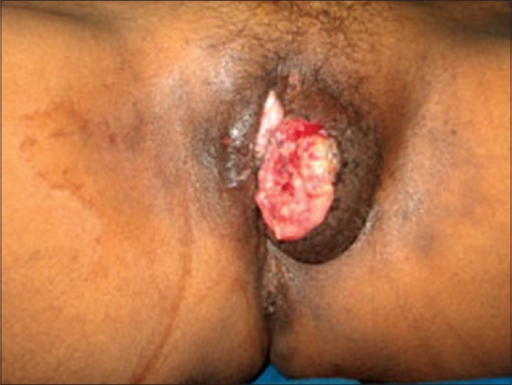 Clinical photograph of donovanosis patient showing ulcerogranulomatous lesion over left labia