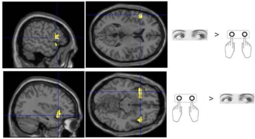 Sub regions of the ventrolateral frontal cortex which were found to show activity which varied with response modality during processing of Flip rule feedback events.