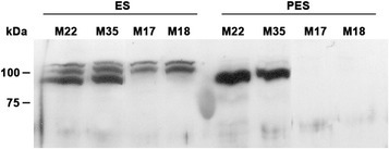 Immunoblot of sucrose synthase proteins in elongating stem (ES) and post-elongating stem (PES) internodes of control lines (M22, M35) and the lines containing the PEPC7-P4::MsSUS1 construct (M17, M18). Each lane contains 40 μg of soluble protein from ES or PES internodes. Numbers at the side of the blot indicate the molecular mass of the protein markers in kDa