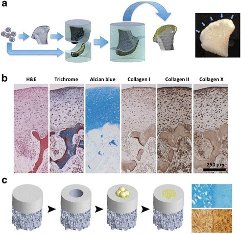 Engineering of stratified, mechanically functional human cartilage. a Human mesenchymal stem cells are induced to fuse into cell bodies which are then placed on the cartilage side of a mold in the exact shape of a condyle, an anatomically shaped bone scaffold is placed on the other side, and the two pieces are press-fit. After 5 weeks of in-vitro cultivation, an anatomical layer of articular cartilage forms at the interface with the underlying bone. b The resulting cartilage is physiologically thick and stratified, expressing all key markers, and integrated with the underlying bone. c The fusing mesenchymal stem cell bodies were also tested for their ability to repair small cartilage defects. Structural integration is shown by alcian blue and antibody stains for glycosaminoglycan and collagen type II. The newly formed tissue is shown on the left, the adjacent native cartilage on the right. Selected images are reproduced with permission from [73]. H & E hematoxylin and eosin