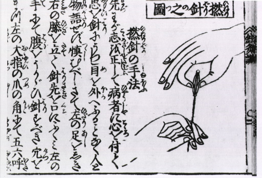 <p>Illustration set in a page with Japenese characters showing two hands holding acupuncture needle in the proper position.</p>