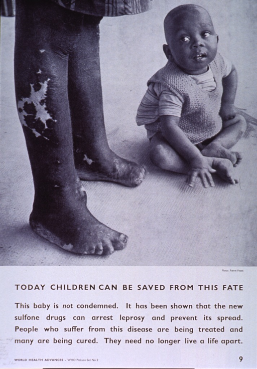 <p>White poster with black lettering.  Upper portion of poster features a reproduction of a b&amp;w photo showing a baby seated by the deformed feet of a person with leprosy.  Title below photo, caption below title.  Note in lower left corner.</p>