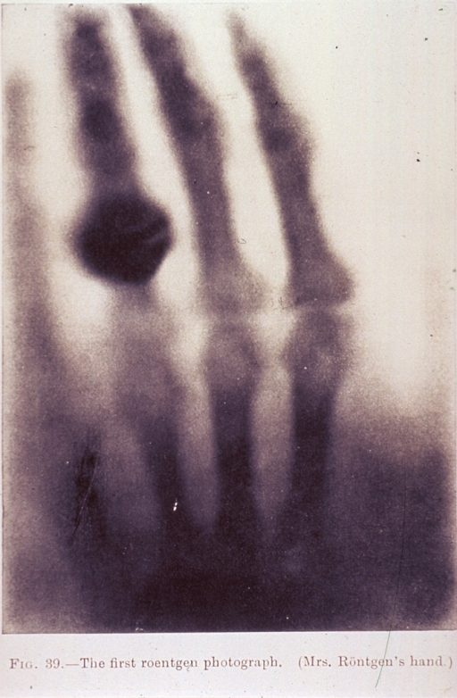 <p>X-ray showing the bones of the hand and fingers, and a ring.</p>