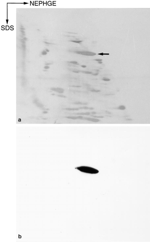 Two-dimensional analysis of rat brain synaptopodin.  (a) Coomassie brilliant blue-stained two-dimensional Western  blot, using NEPHGE in the first dimension and SDS-PAGE in  the second, of a fraction enriched for synaptopodin (arrow) obtained after reversed-phase HPLC chromatography of a heat- stable supernatant from rat forebrain cytosolic extracts. (b) ECL  detection of synaptopodin using mAb G1.