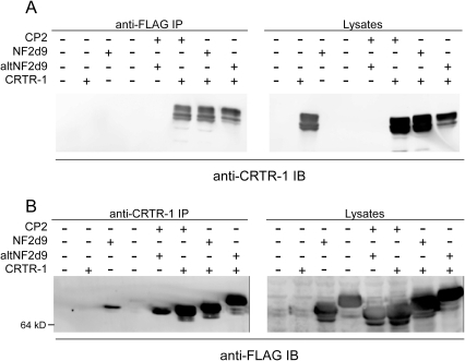 CRTR-1 co-immunoprecipitates with other CP2 family members.HEK293T cells were co-transfected with pEF-IRES-puro6 expression plasmids encoding CRTR-1 and FLAG-CP2, FLAG-NF2d9 or FLAG-altNF2d9, as indicated. Whole cell lysates were immunoprecipitated (IP) with (A) anti-FLAG (M2) antibody or (B) anti-CRTR-1 antibody and immunoblotted (IB) with anti-CRTR-1 or anti-FLAG antibodies respectively. Western blot analysis of input lysates is shown.