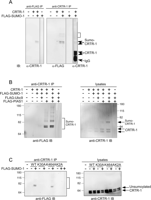 CRTR-1 is sumolyated at K30 and sumoylation is enhanced by PIAS1 or Ubc9.A. COS-1 cells were co-transfected with pEF-CRTR-1and pEF-FLAG-SUMO-1 expression plasmids as indicated. Whole cell lysates were immunoprecipitated (IP) with anti-FLAG or anti-CRTR-1 antibody and analysed by immunoblotting (IB) as indicated to detect sumoylated proteins. Bracket identifies higher molecular weight bands as possible multiple or polysumoylated CRTR-1. B. COS-1 cells were co-transfected with pEF-CRTR-1, pEF-FLAG-SUMO-1, pEF-FLAG-Ubc9, and pEF-FLAG-PIAS1 expression plasmids as indicated. Whole cell lysates were immunoprecipitated with anti-FLAG or anti-CRTR-1 antibody and analysed by immunoblotting with anti-CRTR-1 or anti-FLAG antibody respectively to detect sumoylated proteins (bracket). Immunoblotting of input lysates with anti-CRTR-1 antibody detected both sumoylated and unsumoylated CRTR-1. C. COS-1 cells were co-transfected with pEF-CRTR-1, pEF-K30A, pEF-K464A or pEF-2KA together with pEF-FLAG-SUMO-1 expression plasmids. Whole cell lysates were immunoprecipitated with anti-CRTR-1 antibody and analysed by immunoblotting with anti-FLAG antibody respectively to detect sumoylated proteins (bracket). Immunoblotting of input cell lysates with anti-CRTR-1 antibody detected unsumoylated CRTR-1. Molecular weight markers are shown (kD). Also see Figure S3A which is a re-probing of the blot in (C) with anti-CRTR-1 antibody.