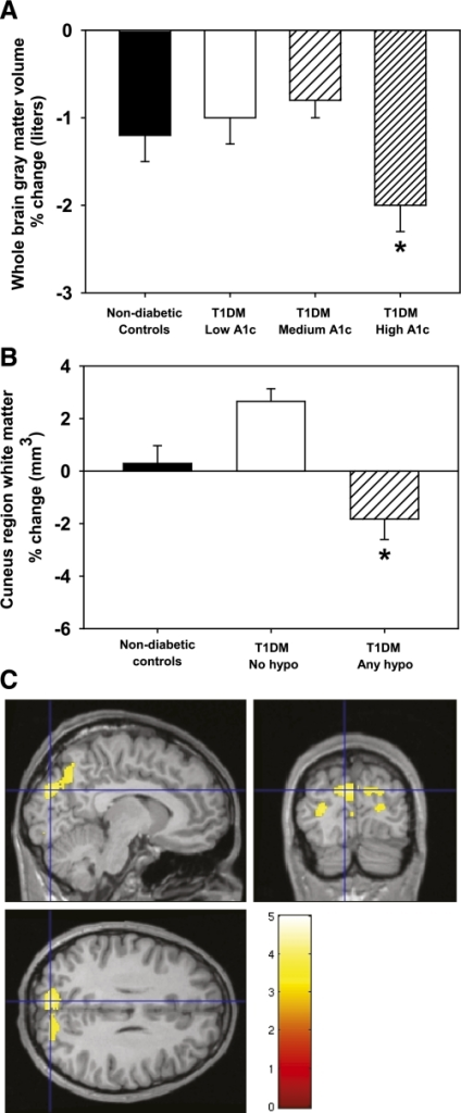 A: Mean ± SEM percent change in whole brain gray matter across hyperglycemia subgroups and NDCs. *Different from other HbA1c groups (P < 0.05) and marginally different from NDC (P = 0.06). B: Occipital/parietal white matter across severe hypoglycemia subgroups and NDCs. *Different from other groups (P < 0.05). C: Statistical image showing occipital/parietal region where T1DM with any hypoglycemia differ from T1DM with no hypoglycemia. Hypo, hypoglycemia. (A high-quality digital representation of this figure is available in the online issue.)