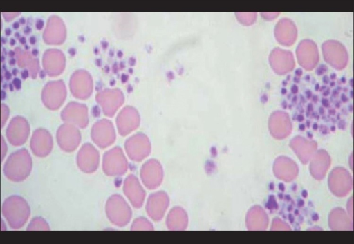 how to make a blood smear with anemic blood