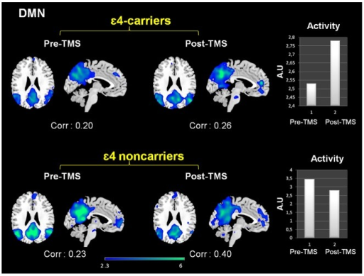 Effects of rTMS in the DMN present in deactivation task-related networks.While both groups exhibited increased temporal correlations between the timecourse of this network and rest condition after rTMS, its activity (intensity of the expression) clearly diverged. In the bar graphs it is shown that DMN activity decreased for ε4 non-carriers whereas increased for the ε4-carriers. Corr: Correlation values (r-Pearson) between the timecourse of each network and the 'resting condition'. Intensity values are thresholded at z = 2.3. Coordinates are given in MNI (x = −4, z = 26). A.U = arbitrary units.