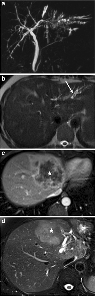 Severe LPAC syndrome with secondary intrahepatic cholangiocarcinoma formation in a 55-year-old woman. Maximum intensity projection coronal MRCP (a), and transverse T2-weighted acquisition show right biliary irregularities and dilated left bile ducts filled with several small intrahepatic stones (white arrow in b). Two years later, T1-weighted transverse acquisitions with fat saturation after gadolinium chelate injection obtained at portal phase (c) and transverse T2-weighted acquisition (d) show an intrahepatic large mass with irregular contrast enhancement (white star). Liver biopsy confirmed the diagnosis of intrahepatic cholangiocarcioma