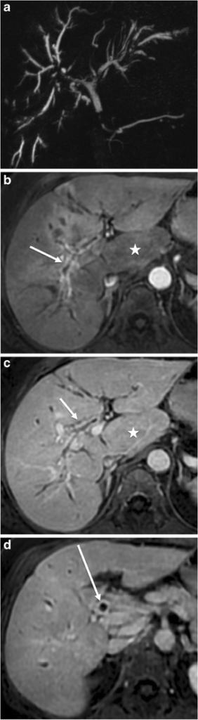 Diffuse and severe cholangitis in a 64-year-old woman. Maximum intensity projection coronal MRCP (a), T1-weighted transverse acquisitions with fat saturation after gadolinium chelate injection obtained at arterial (b), portal (c) and delayed phase (d) show biliary irregularities and stenoses (a) associated with intense biliary contrast uptake of the thickened biliary walls at the arterial (white arrows in b) and portal phase (white arrow in c). The common bile duct presents with the same abnormalities (white arrow in d). Note the segment I hypertrophy (white star in b and c)