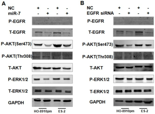 miR-7 suppresses AKT and ERK1/2 pathway activation dependent of its EGFR inhibition in EOC cells.(A) HO-8910pm and ES-2 cells were transfected with miR-7 or NC, EGFR, AKT and ERK1/2 phosphorylation were analyzed by western blotting. (B) HO-8910pm and ES-2 cells were transfected with EGFR siRNA or NC, EGFR, AKT and ERK1/2 phosphorylation were analyzed by western blotting. (*P<0.05. **P<0.01).