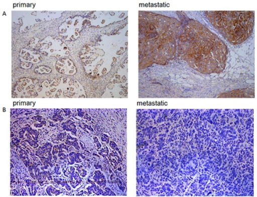 miR-7 and EGFR are inersely expressed in EOC tissues.(A) Expression of miR-7 in primary EOC and its matched metastatic tissue by CISH. (B) Expression of EGFR in primary EOC and its matched metastatic tissue by IHC. (*P<0.05. **P<0.01).