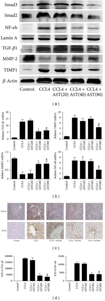Effects of astaxanthin on expression of TGF-β1, MMP2, TIMP1, and NF-κb. (a) The analysis of western blotting showed that astaxanthin decreased the expression of TGF-β1, TIMP1, and NF-κb and, contrarily, increased the expression of MMP2 compared to CCL4 group. (b) The mRNA level of TGF-β1 was decreased by astaxanthin (40 mg/kg and 80 mg/kg), and the mRNA levels of TIMP1 and NF-κb were decreased with the dose of 80 mg/kg. However, the mRNA levels of MMP2 were increased by astaxanthin (40 mg/kg and 80 mg/kg) compared to CCL4 group. Data are expressed as mean ± SD (n = 7, *P < 0.05 for CCL4 + AST(40) versus CCL4, #P < 0.05 for CCL4 + AST(80) versus CCL4). (c) The area of positive cells of TGF-β1 was significantly decreased by astaxanthin (40 mg/kg and 80 mg/kg) stained by immunohistochemistry (original magnification: ×200). The expression of NF-κB in nuclei decreased obviously with astaxanthin (40 mg/kg and 80 mg/kg) treatment (original magnification: ×400). (d) The IODs of TGF-β1 and NF-κb were analyzed by Image-pro Plus 6.0. There existed a significant decrease with astaxanthin (40 mg/kg and 80 mg/kg) treatment (n = 7, *P < 0.05 for CCL4 + AST(40) versus CCL4, #P < 0.05 for CCL4 + AST(80) versus CCL4).