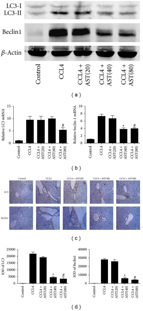 Effect of astaxanthin on the regulation of autophagy in HSCs. (a) The analysis of western blotting showed that astaxanthin (40 mg/kg and 80 mg/kg) obviously decreased the expression of LC3-II and beclin-1. (b) The mRNA levels of beclin-1 were decreased by astaxanthin (40 mg/kg and 80 mg/kg) compared to CCL4 group, and the level of LC3 was decreased only with the dose of 80 mg/kg. Data are expressed as mean ± SD (n = 7, *P < 0.05 for CCL4 + AST(40) versus CCL4, #P < 0.05 for CCL4 + AST(80) versus CCL4). (c) The areas of positive cells of LC3 and beclin-1, mainly expressed in HSCs as showed, were visibly diminished by astaxanthin (40 mg/kg and 80 mg/kg) (original magnification: ×200). (d) The IODs of LC3 and beclin-1 were analyzed by Image-pro Plus 6.0. There existed a significant decrease with astaxanthin (40 mg/kg and 80 mg/kg) treatment (n = 7, *P < 0.05 for CCL4 + AST(40) versus CCL4, #P < 0.05 for CCL4 + AST(80) versus CCL4).