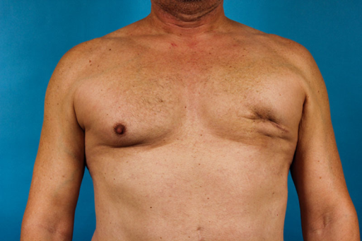 The appearance of the patient's chest 5 months after mastectomy and 70 ml of fat graft.