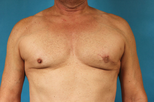 The final result 6 months after the last fat grafting session.
