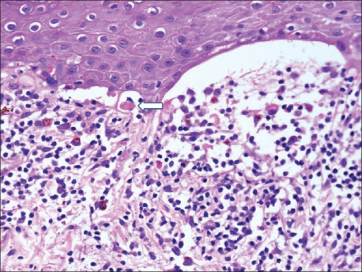 Dense lymphohistiocytic inflammation at dermoepidermal junction with numerous melanophages in the upper dermis. Vacuolar degeneration of basal layer and colloid bodies (arrow) are also visible (H and E, ×400)