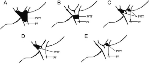 Different classifications of PVTT. (A), (B), and (C) belong to group A; (D) and (E) belong to group B. (A) Tumor thrombi involving the main portal vein trunk, the left portal vein and the right portal vein; (B) tumor thrombi involving the main portal vein trunk; (C) tumor thrombi involving both the left and right portal veins; (D) tumor thrombi involving only the right branch of portal vein; and (E) tumor thrombi involving only the left branch of portal vein. PV, portal vein; PVTT, portal vein tumor thrombus.