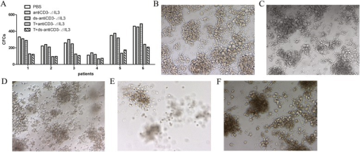 Cytotoxicity of IL2 pre-activated human T cells mediated by the fusion proteins against AML leukemic progenitors in a methylcellulose colony-forming assay. (A) AML cells from six patients were incubated in serum-free IMDM for 24 h in the presence or absence of different fusion proteins (500 ng/mL) combined with pre-activated T cells at E/T ratio of 25:1, then plated in AML-CFC assays to evaluate the relative cytotoxicity of T cells mediated by the fusion proteins against these leukemic progenitors. (B-F) showed typical colonies of different groups. (B) PBS, (C) antiCD3Fv-⊿IL3, or (D) ds-antiCD3Fv-⊿IL3 alone was used as control group. (E) Cytotoxicity of T cells against leukemic progenitors in the presence of antiCD3Fv-⊿IL3. (F) Cytotoxicity of T cells against leukemic progenitors in the presence of ds-antiCD3Fv-⊿IL3.