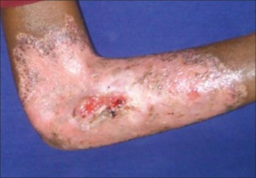Posttreatment photograph showing healing after oral acyclovir therapy