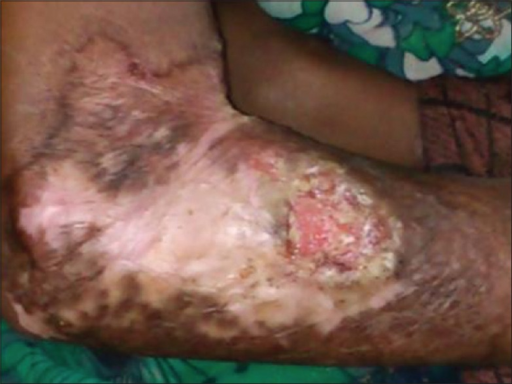 Recurrence of herpetic lesions after 1½ months involving right forearm