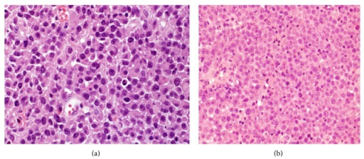 Histopathologic features of PBL: (a) H&E stain shows sheets of large atypical lymphoid cells with plasmacytic differentiation with abundant cytoplasm, paranuclear hof, and large nuclei; (b) it displays large cells with an immunoblastic appearance, with central oval nuclei with prominent nucleoli and moderately abundant cytoplasm.
