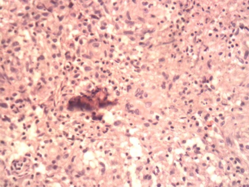 Tissue biopsy showing classical necrotizing granuloma. H&E staining (40× power).
