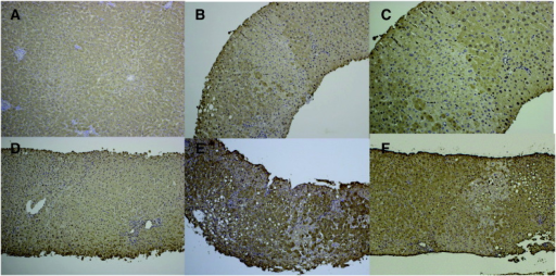 Immunohistochemical localization of argininosuccinate synthetase 1 in the livers from the control and Cases 1 to 4.A: control (× 100), B: Case 1 (× 100), C: Case 1 (× 200), D: Case 2 (× 100), E: Case 3 (× 100), F: Case 4 (× 100).