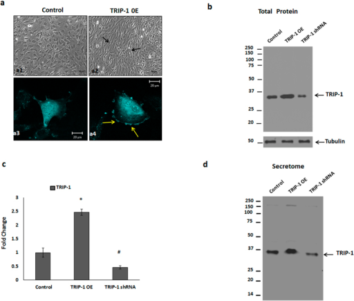 Overexpression and Silencing of TRIP-1 protein in MC3T3-E1 cells.CFP-TRIP-1 plasmid was used for establishing a stable cell line overexpressing TRIP-1. (3a) Light microscopy images of Control (a1) and TRIP-1 overexpressing cells (a2). Note the change in the cellular morphology (black arrows). (3a3 and 3a4) Confocal microscopy images of control and TRIP-1 overexpressing cells. Note the accumulation of TRIP-1 on the cell membrane as shown by yellow arrows (a4). Western blot analysis of total cell lysate (3b) and secretome (3d) from control, TRIP-1 overexpressed and TRIP-1 silenced cells shows the expression of TRIP-1. (3c) Quantitative analysis of TRIP-1 protein expression showing 2.5-fold increase in overexpressed cells and 70% reduction in expression in TRIP-1 silenced cells. Student's t-test used to obtain statistical significance with respect to control. *, # Represents significance of p < 0.05.