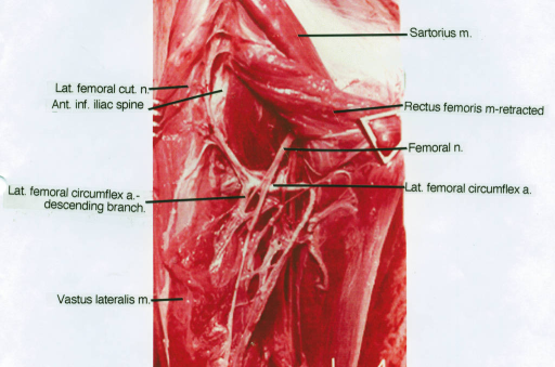 lateral femoral cutaneous nerve; anterior inferior iliac spine; lateral femoral circumflex artery; vastus lateralis muscle; sartorius muscle; rectus femoris muscle; femoral nerve; lateral femoral circumflex artery