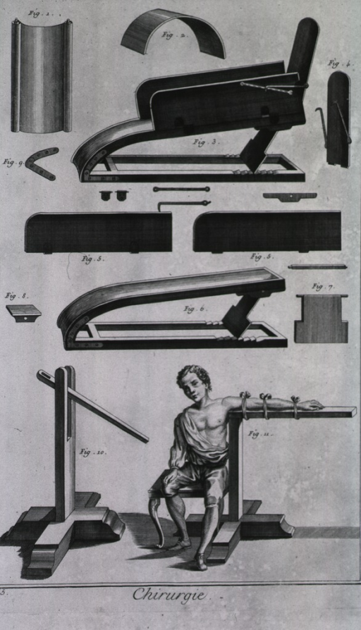 <p>Equipment displayed include a whale bone, a hoop, machines for complicated fractures, and machines for dislocated arms.</p>