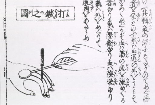 <p>An acupuncture needle rests in finger while hand holds a hammer to tap the area above finger - a method of heightening the effect of acupuncture.</p>