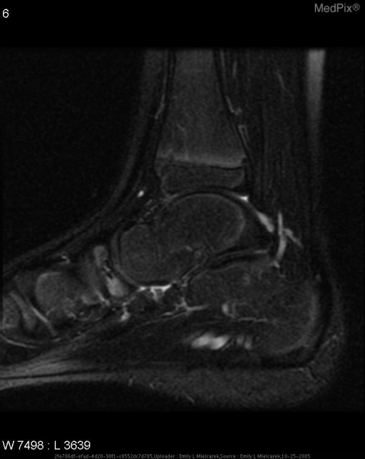 FSE T2-weighted with fat sat sagittal MR image of the left foot shows high-signal-intensity necrosis and edema in the tarsal navicular bone and low-signal-intensity sclerosis of this bone.