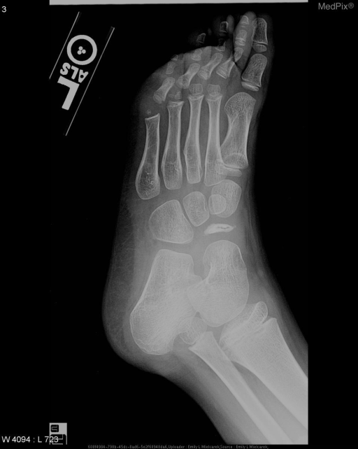 Oblique radiograph of the left foot demonstrates sclerosis and decreased AP diameter of the navicular bone.