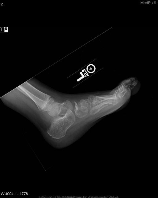Lateral radiograph of the left foot demonstrates sclerosis and decreased AP diameter of the navicular bone.