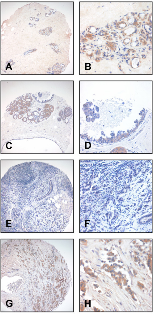 ITIH2 immunohistochemistry on TMA derived from normal and cancerous breast tissue. A+B: Strong cytoplasmic staining is seen in normal epithelial cells of the mammary gland. C+D: Ductal carcinoma in-situ (high grade type) with moderate focal cytoplasmic staining and normal, partially hyperplastic gland epithelium with strong cytoplasmic staining (see arrows). E-H: Invasive ductal carcinoma with either negative (E, F) or strong ITIH2 staining (G, H). Magnification: 100× (A, C, E, G), 400× (B, D, F, H).