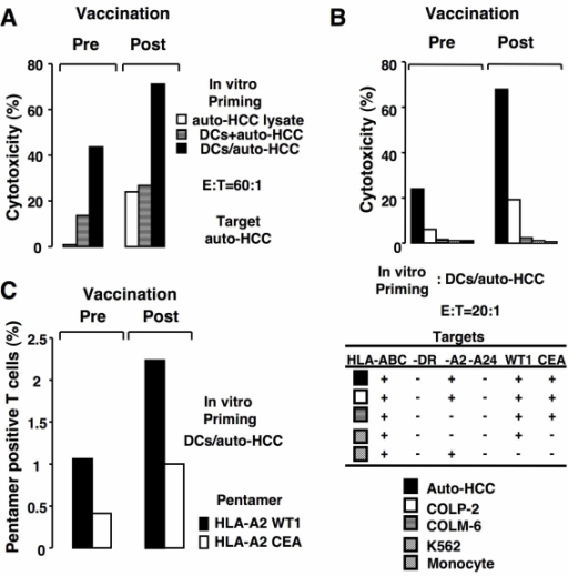 Induction of CEA- and WT1-reactive T cells by vaccination with autologous FCs. A, Nonadherent PBMCs obtained before (left panel) and after vaccination (right panel) were stimulated with auto-HCC cells lysates, DCs mixed with auto-HCC, or unirradiated DCs/auto-HCC. T cells were cocultured with the HCC cells at a ratio of 60: 1. B, Nonadherent PBMCs obtained before (left panel) and after vaccination (right panel) were stimulated by unirradiated DCs/auto-HCC. T cells were cocultured with the HCC cells, COLP-2, COLM-6, K562, or autologous monocytes at a ratio of 20:1. Percentage of cytotoxicity (mean ± SD of 3 replicates) was determined by flow cytometry-CTL assay. C, Nonadherent PBMCs (HLA-A2+/A24-) obtained before (left panel) and after vaccination (right pane) were stimulated with unirradiated DCs/auto-HCC. T cells were analyzed by HLA-A2/WT1 or HLA-A2/CEA pentameric assay. *, Significant differences.