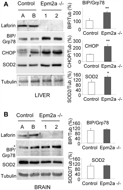 Laforin deletion results in increased ER stress in the liver of Epm2a-/- mice.A and B) Western blot analyses of laforin and ER-stress markers (BIP/Grp78, CHOP, SOD2) in liver (A) and whole brain (B) biopsies of two Epm2a+/+ (A and B) and two Epm2a-/- mice (1 and 2). A representative blot of four different animals of each type is shown. Right panels show normalized intensities (mean±SEM; n: 4) of different markers expressed as a percentage with respect to control mice. Tubulin was used as a loading control. * In brain samples, a band of 94 kDa is recognized by the anti-BIP/Grp78 antibody instead of the corresponding 78 kDa band.